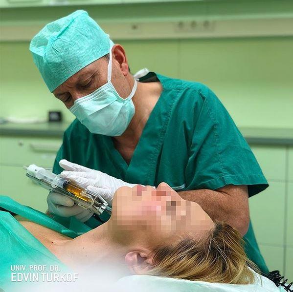 Vampirlift Behandlung mit dem Derma-Injektor Dr. Turkof Wien